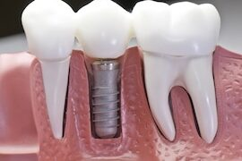 dental-implants-tijuana-mexico